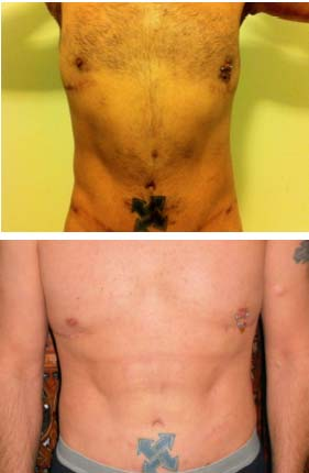 Abdominal Etching Before and After Pictures
