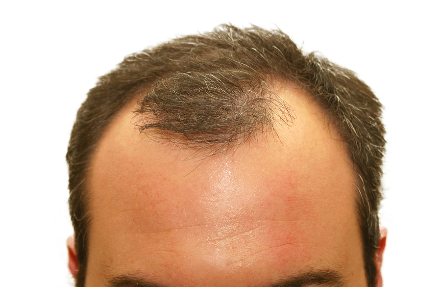 Seeing More Scalp than You Prefer? Hair Loss Treatment ...