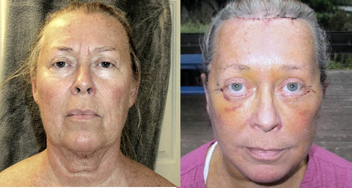 healing from face lift