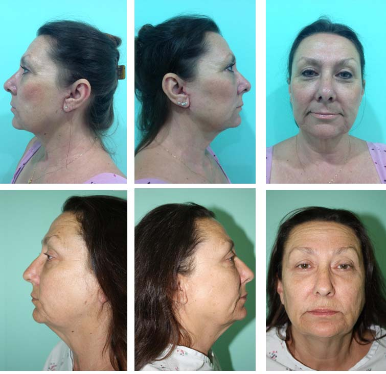 Before and After Facelift Surgery in Mexico