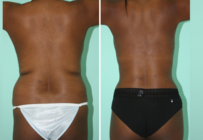 Body Contouring Board Certified Cosmetic Surgery