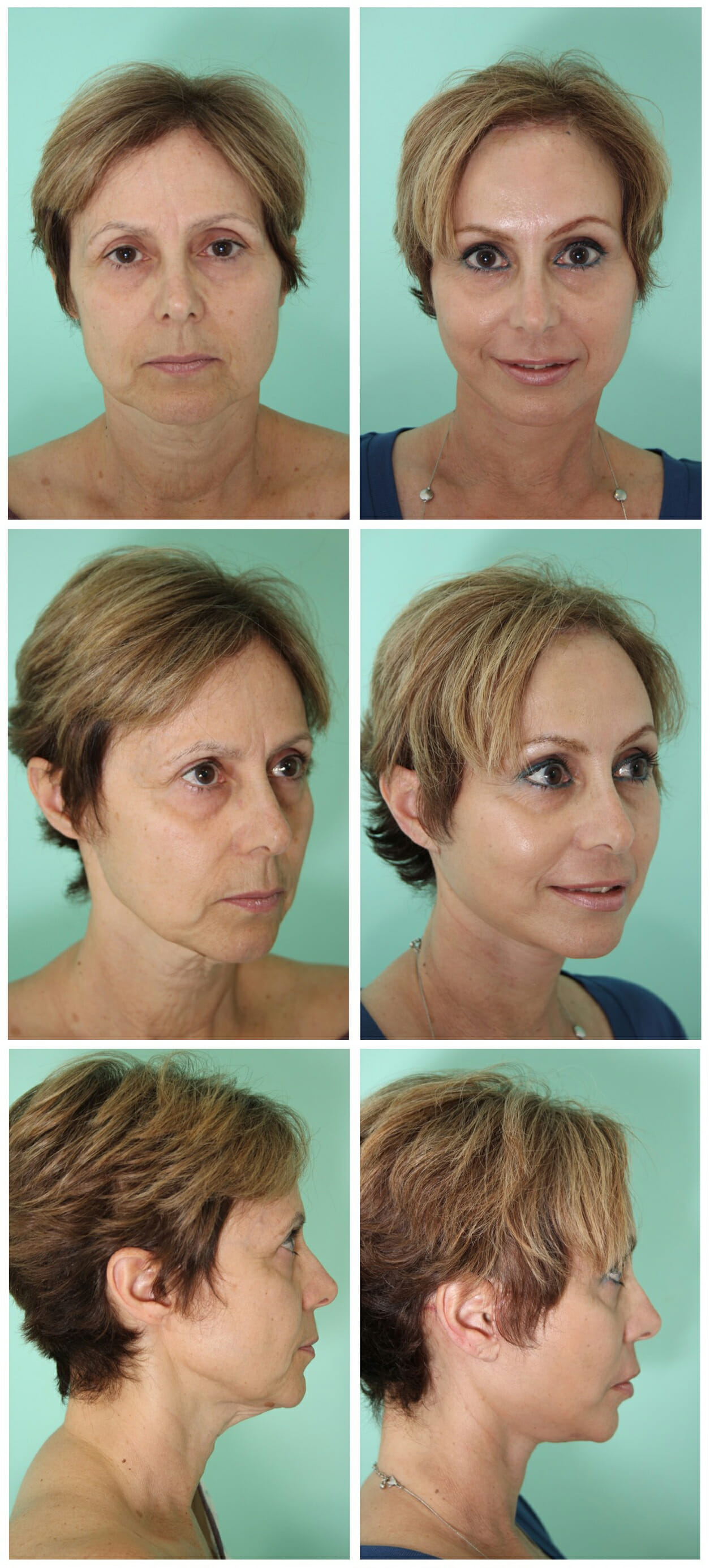 Facelift surgery in Cosmed Tijuana Mexico
