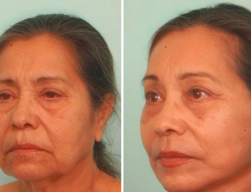 Facelifts: Are You Ready for a Change but Want Results that Look Natural? Consider Dr. Quiroz!