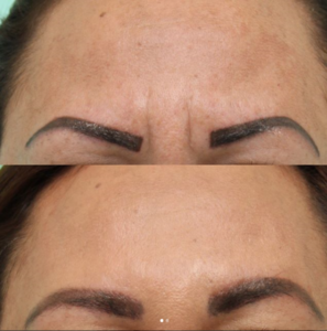 before and after botox. Frown lines