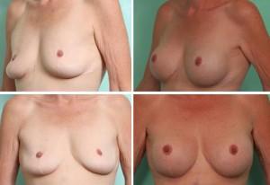 breast3