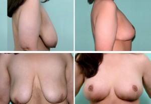 breast7