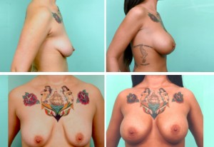 breast8