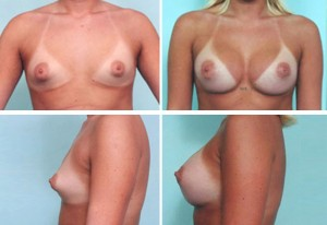 breast9