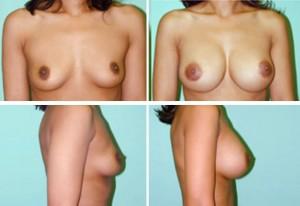 breast 11