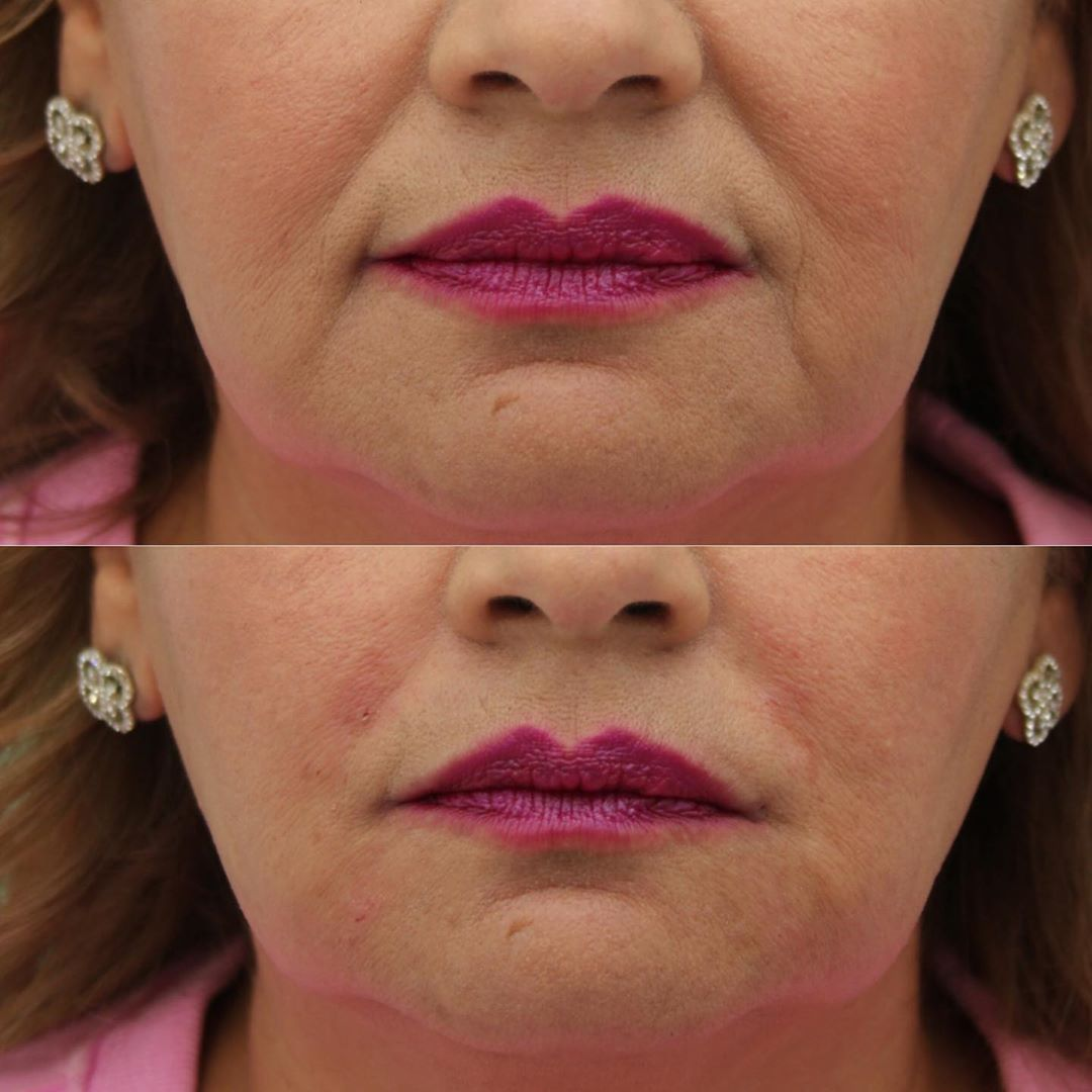 fillers, non-surgical treatment, botox, juvederm, beauty